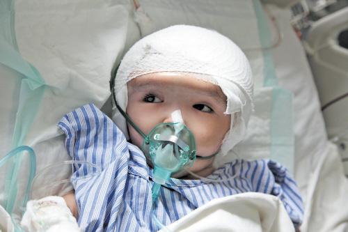 3岁小女孩成功接受全球首例全颅骨置换手术.jpg