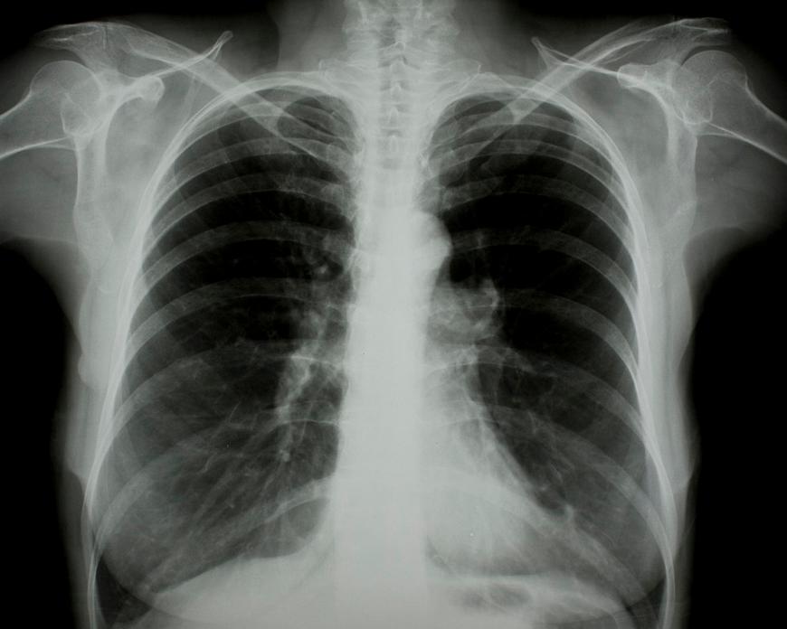 X光是如何透射身体的