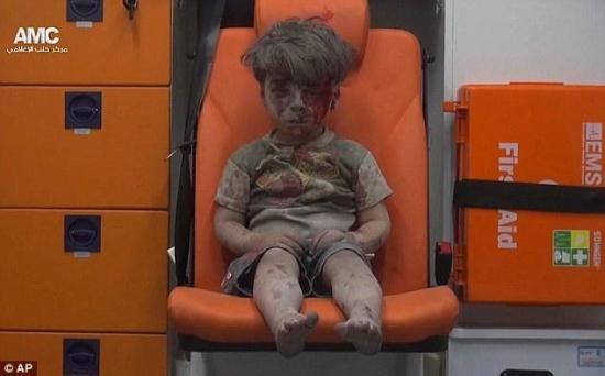 叙利亚5岁儿童空袭中死里逃生.jpg