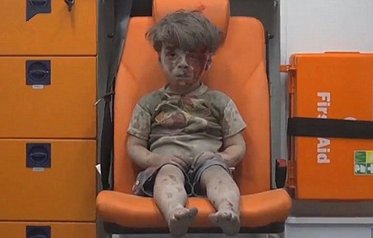叙利亚男孩在空袭中死里逃生的照片触动全球
