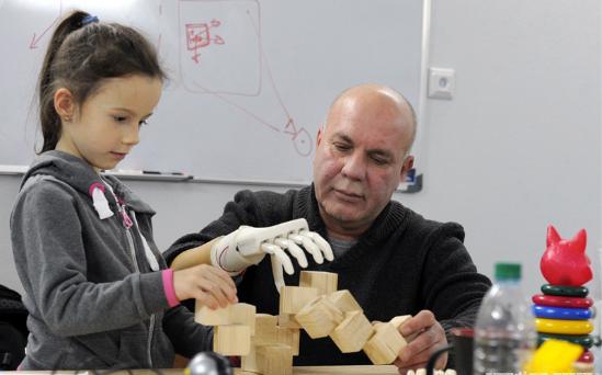 3D打印技术让父亲重获双手.png