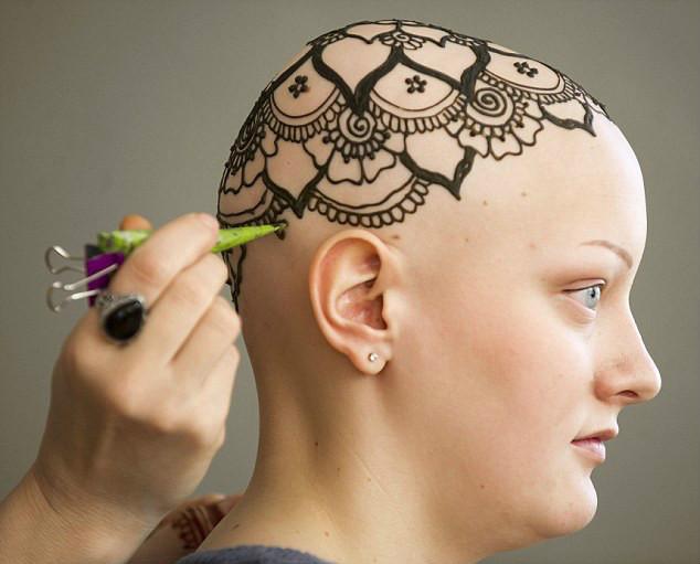 癌症病人的新头发——海娜王冠