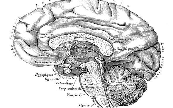 脑部扫描.jpg