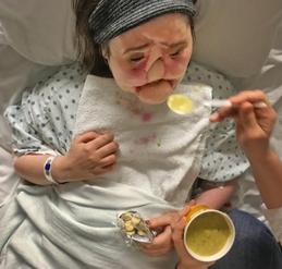 移植的脸如何改变了一名女子的生活