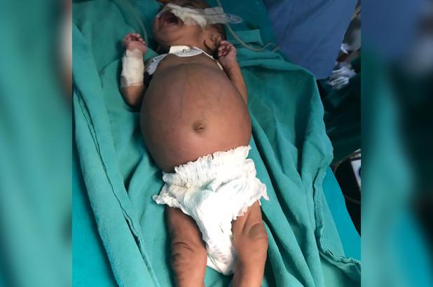 印度女婴肚子莫名肿大 医生竟在其体内发现寄生胎